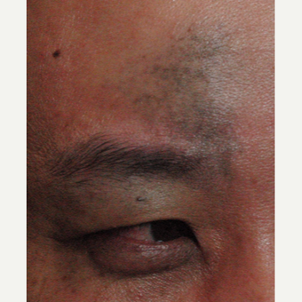 25-34 year old man treated with Birthmark Removal before 3220795