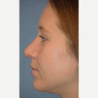 18-24 year old woman treated with Rhinoplasty after 3441905