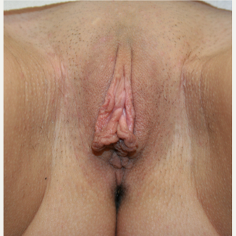 18-24 year old woman treated with Labiaplasty before 2815315