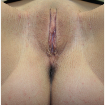 18-24 year old woman treated with Labiaplasty after 2815315