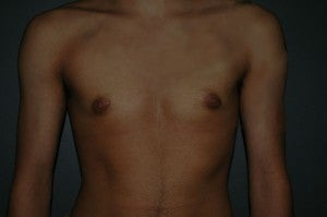 FTM top surgery. Keyhole approach and periarolar mastopexies, (incisions around nipple to decrease size). after 1130783