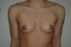 FTM top surgery. Keyhole approach and periarolar mastopexies, (incisions around nipple to decrease size). before 1130783