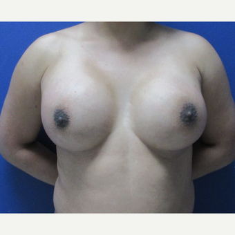 25-34 year old woman treated with Breast Augmentation after 3695865