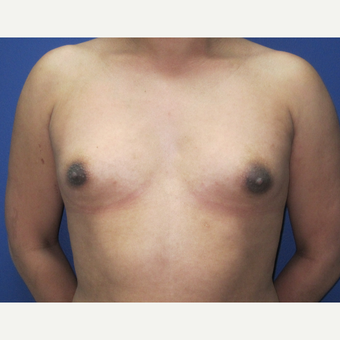 25-34 year old woman treated with Breast Augmentation before 3695865