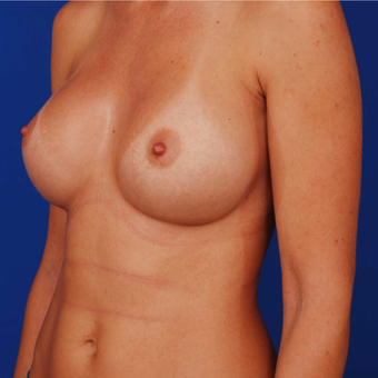 Breast Augmentation - 25-34 Year Old Mother of Two after 3165720
