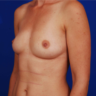 Breast Augmentation - 25-34 Year Old Mother of Two before 3165720