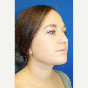 25-34 year old woman treated with Rhinoplasty before 3842336