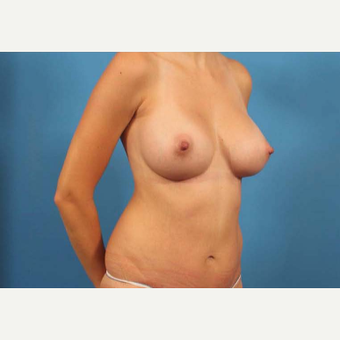 25-34 year old woman treated with Tummy Tuck after 3787166