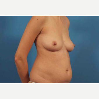 25-34 year old woman treated with Tummy Tuck before 3787166