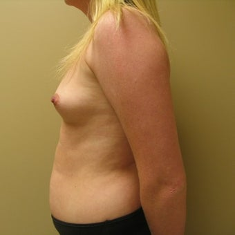 25-34 year old woman treated with Breast Augmentation before 2466751