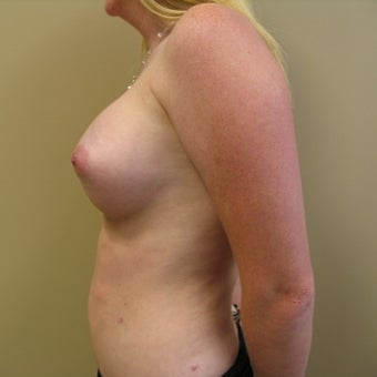 25-34 year old woman treated with Breast Augmentation after 2466751