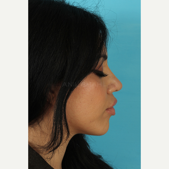 25-34 year old woman treated with Rhinoplasty after 3691335