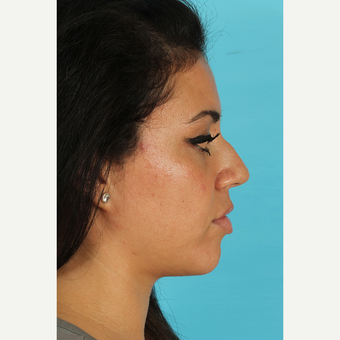 25-34 year old woman treated with Rhinoplasty before 3691335