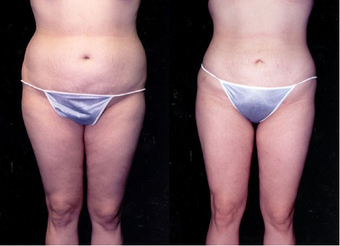 23-year-old woman treated with Liposuction. before 574534