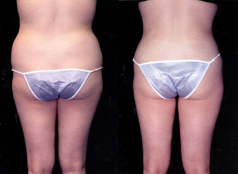 23-year-old woman treated with Liposuction. after 574534