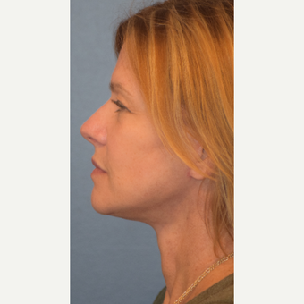 55-64 year old woman treated with Facelift after 3501541