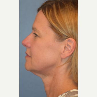 55-64 year old woman treated with Facelift before 3501541