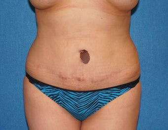 37 y/o woman with unacceptable prior tummy tuck before 1216628