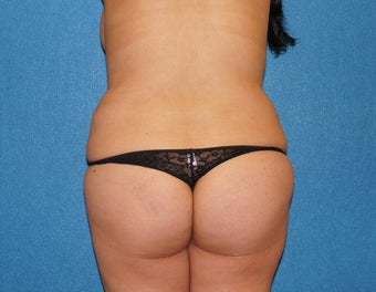 37 y/o woman with unacceptable prior tummy tuck 1216628