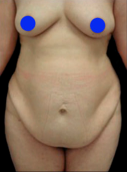 55-64 year old woman treated with Post Bariatric Tummy Tuck before 3820615