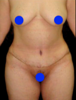 55-64 year old woman treated with Post Bariatric Tummy Tuck after 3820615