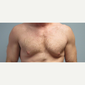 35-44 year old man treated with Male Breast Reduction before 3305997