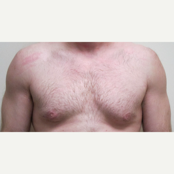 35-44 year old man treated with Male Breast Reduction after 3305997