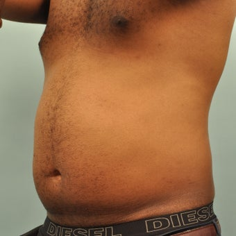 25-34 year old man treated with CoolSculpting before 2203218