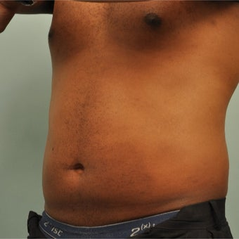 25-34 year old man treated with CoolSculpting after 2203218