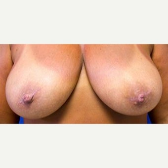 45 year old woman treated with Inverted Nipple Surgery