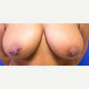 45 year old woman treated with Inverted Nipple Surgery before 1952058
