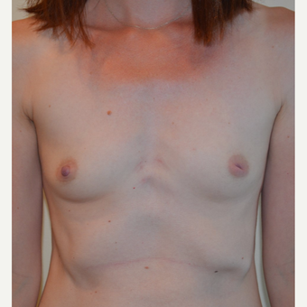 35-44 year old woman treated with Breast Reconstruction before 3092996