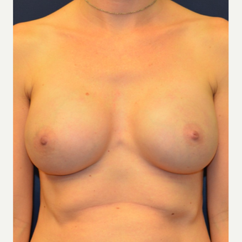 35-44 year old woman treated with Breast Reconstruction after 3092996
