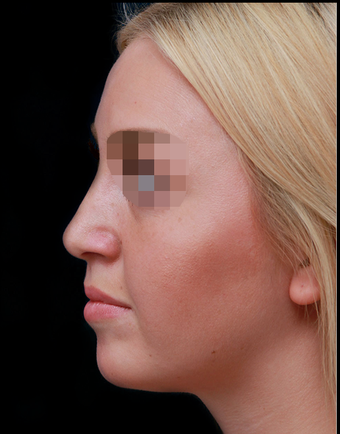 25-34 year old woman treated with Rhinoplasty after 3204720