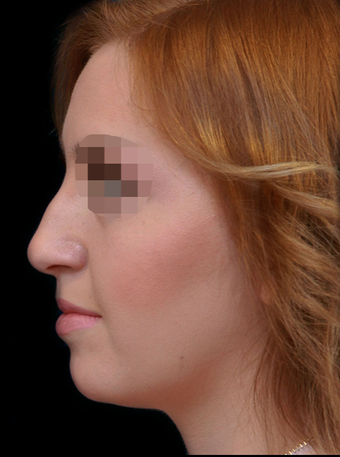 25-34 year old woman treated with Rhinoplasty before 3204720