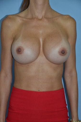 Breast Revision after 1455399