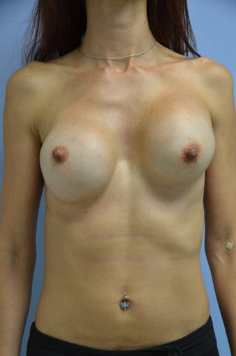 Breast Revision before 1455399
