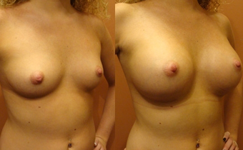 Breast Implants before 975836