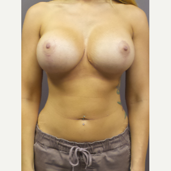 18-24 year old woman treated with Breast Implant Revision after 3590227