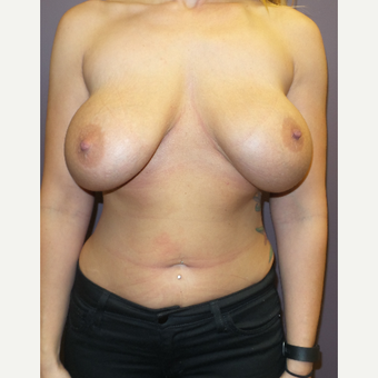 18-24 year old woman treated with Breast Implant Revision before 3590227