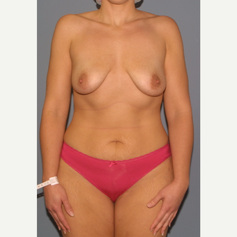 35-44 year old woman treated with Breast Lift with Implants before 3452564