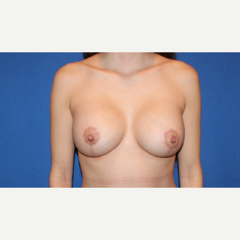 25-34 year old woman treated with Breast Lift with Implants after 3281688