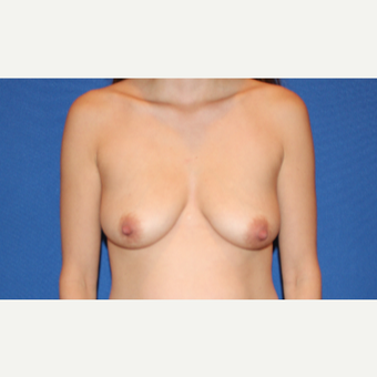 25-34 year old woman treated with Breast Lift with Implants before 3281688