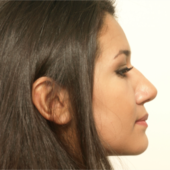 17 or under year old woman treated with Rhinoplasty after 3418731