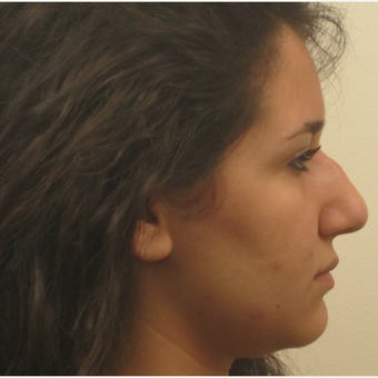17 or under year old woman treated with Rhinoplasty before 3418731
