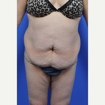 35-44 year old woman treated with Tummy Tuck before 3455274