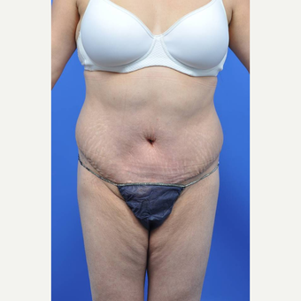 35-44 year old woman treated with Tummy Tuck after 3455274