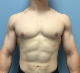 18-24 year old man treated for Male Breast Reduction after 2303796