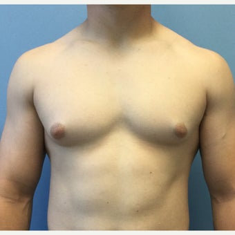 18-24 year old man treated for Male Breast Reduction before 2303796