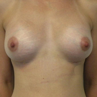 35-44 year old woman treated with Breast Implants after 3536629